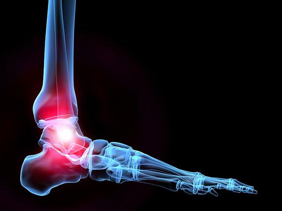 Joignez le combat contre l'ostéoporose