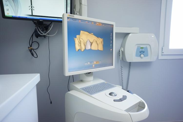Accédez à la 3ème dimension pour vos dents, avec le Docteur Hubert de Grully !