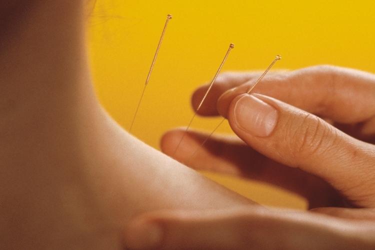 Santé : un point sur l'acupuncture et la médecine « régénératrice » à Dubai !